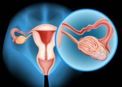 """女性健康丨是的,就连乳腺癌也输给了""""她"""""""