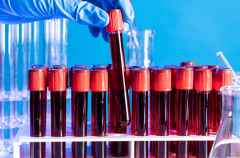 香港验血检测安全吗?实话实说!